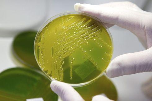 """ALEMANIA INFECCIÓN:MGB303 WERNIGERODE (ALEMANIA), 28/05/2011. Un empleado de un laboratorio comprueba muestras de bacteria """"E. coli Enterohemorrágica"""" en una placa de Petri en el Instituto Robert Koch de Wernigerode (Alemania), hoy, sábado 28 de mayo de 2011. Las autoridades sanitarias alemanas informaron de que, con la muerte hoy de tres personas, son ya nueve los fallecidos por el brote de una variante de la bacteria """"E. coli Enterohemorrágica"""", mientras que la cifra de afectados se mantiene en alrededor de mil. EFE/Matthias Bein"""